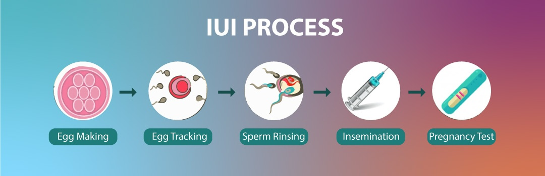 IUI treatment step by step